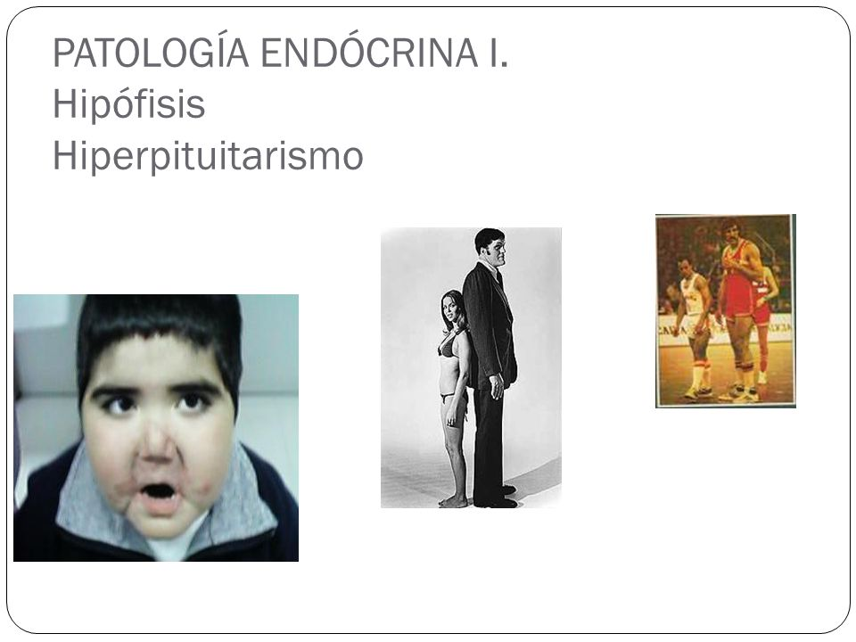 PATOLOGÍA ENDÓCRINA I. Hipófisis Hiperpituitarismo
