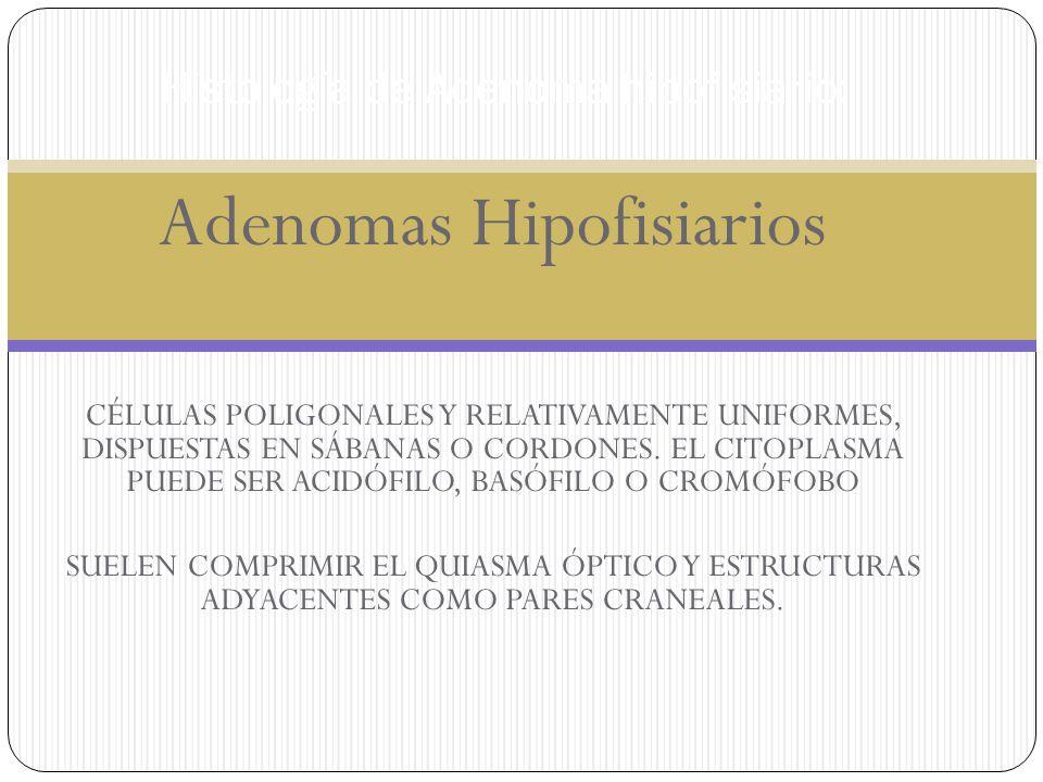 Adenomas Hipofisiarios CÉLULAS POLIGONALES Y RELATIVAMENTE UNIFORMES, DISPUESTAS EN SÁBANAS O CORDONES. EL CITOPLASMA PUEDE SER ACIDÓFILO, BASÓFILO O