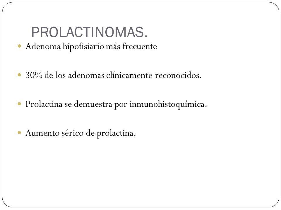 PROLACTINOMAS. Adenoma hipofisiario más frecuente 30% de los adenomas clínicamente reconocidos. Prolactina se demuestra por inmunohistoquímica. Aument