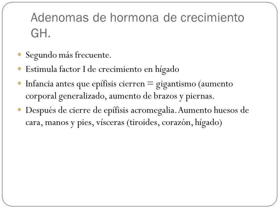 Adenomas de hormona de crecimiento GH. Segundo más frecuente. Estimula factor I de crecimiento en hígado Infancia antes que epífisis cierren = giganti