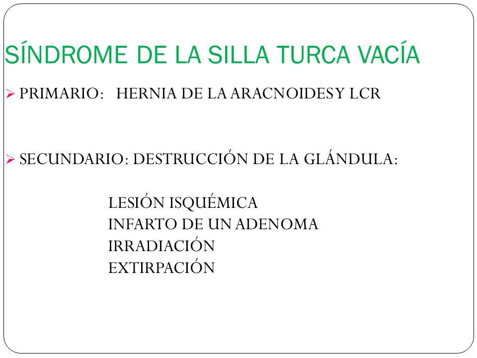 SÍNDROME DE LA SILLA TURCA VACÍA PRIMARIO: HERNIA DE LA ARACNOIDES Y LCR SECUNDARIO: DESTRUCCIÓN DE LA GLÁNDULA: LESIÓN ISQUÉMICA INFARTO DE UN ADENOMA IRRADIACIÓN EXTIRPACIÓN