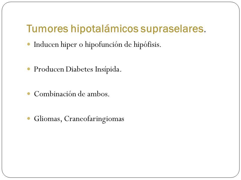 Tumores hipotalámicos supraselares. Inducen hiper o hipofunción de hipófisis. Producen Diabetes Insípida. Combinación de ambos. Gliomas, Craneofaringi