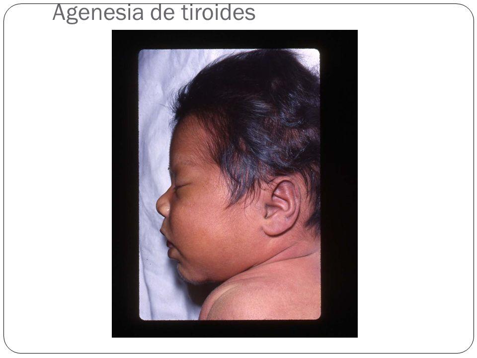 Agenesia de tiroides
