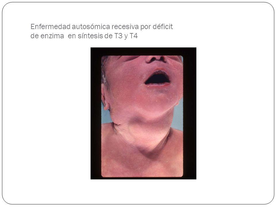 Enfermedad autosómica recesiva por déficit de enzima en síntesis de T3 y T4