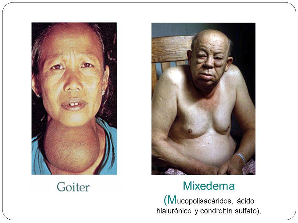 Mixedema (M ucopolisacáridos, ácido hialurónico y condroitín sulfato),