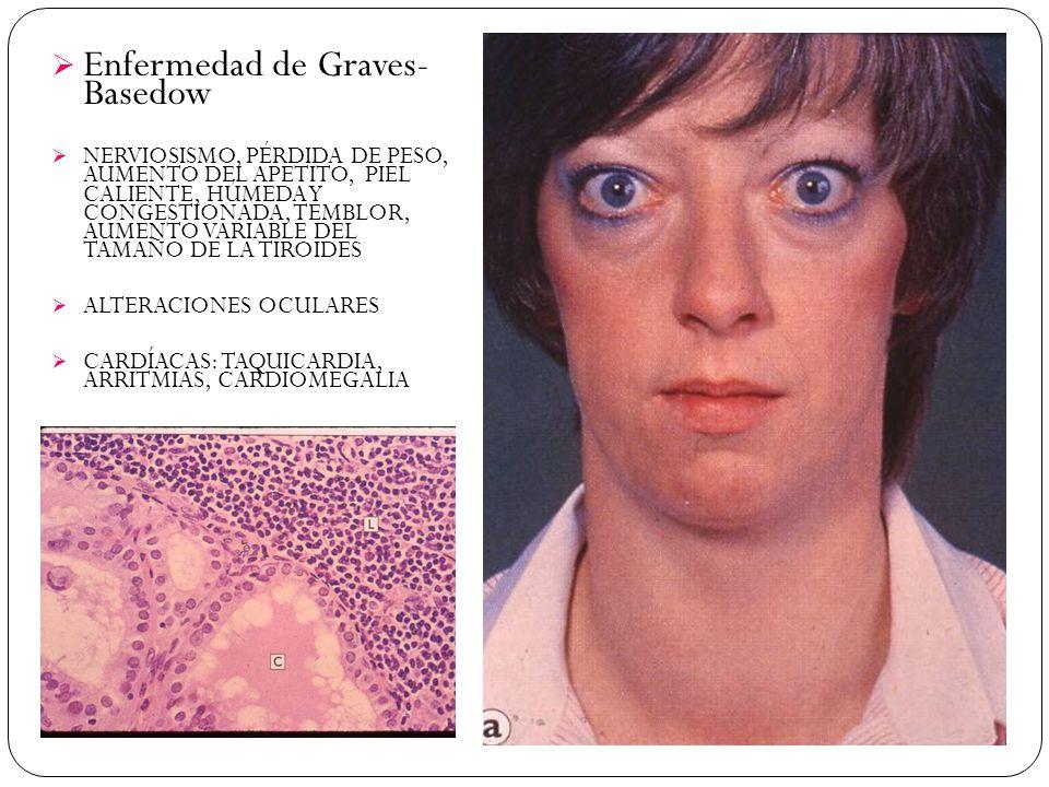 Enfermedad de Graves- Basedow NERVIOSISMO, PÉRDIDA DE PESO, AUMENTO DEL APETITO, PIEL CALIENTE, HÚMEDA Y CONGESTIONADA, TEMBLOR, AUMENTO VARIABLE DEL TAMAÑO DE LA TIROIDES ALTERACIONES OCULARES CARDÍACAS: TAQUICARDIA, ARRITMIAS, CARDIOMEGALIA