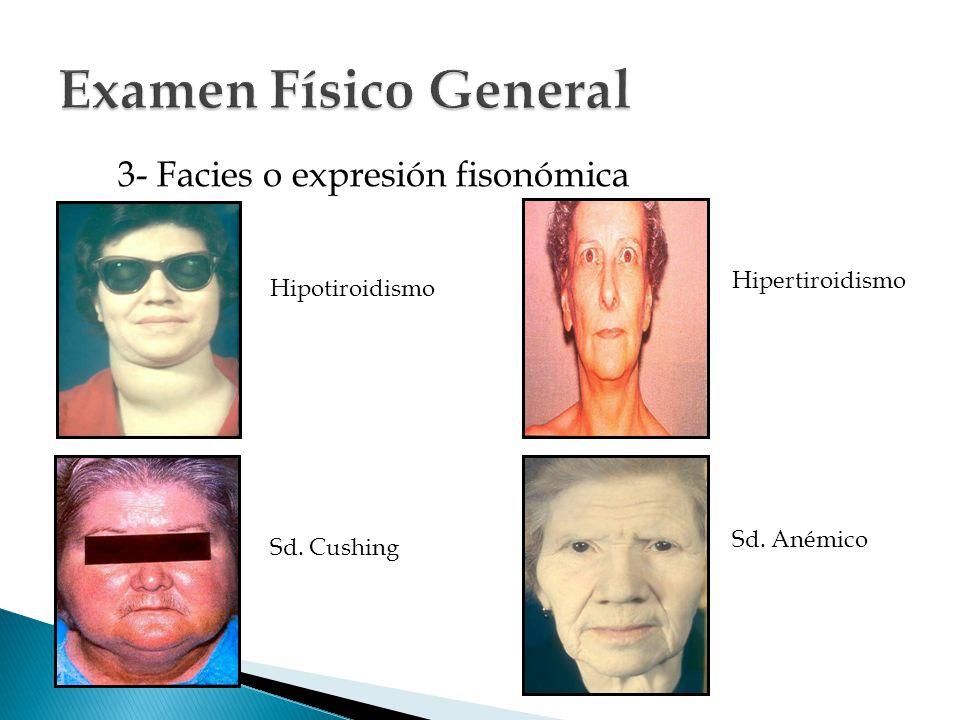 3- Facies o expresión fisonómica Hipotiroidismo Sd. Cushing Hipertiroidismo Sd. Anémico
