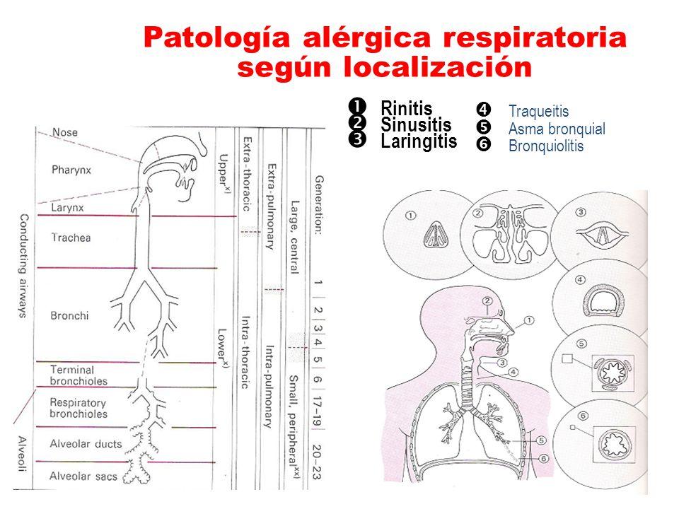 Patología alérgica respiratoria según localización Rinitis Sinusitis Laringitis Traqueitis Asma bronquial Bronquiolitis
