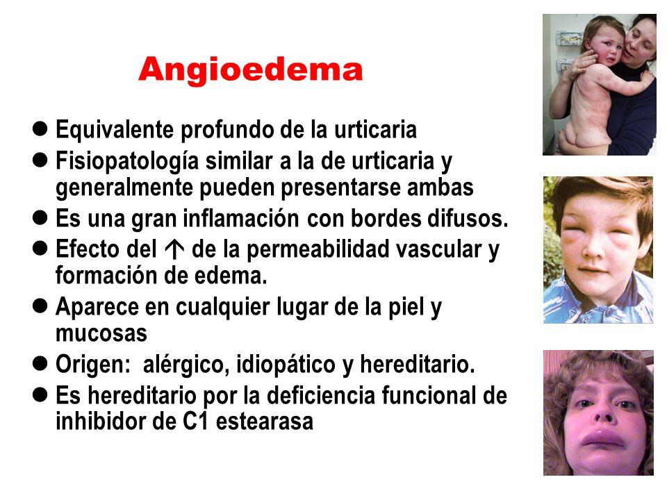 Angioedema Equivalente profundo de la urticaria Fisiopatología similar a la de urticaria y generalmente pueden presentarse ambas Es una gran inflamaci