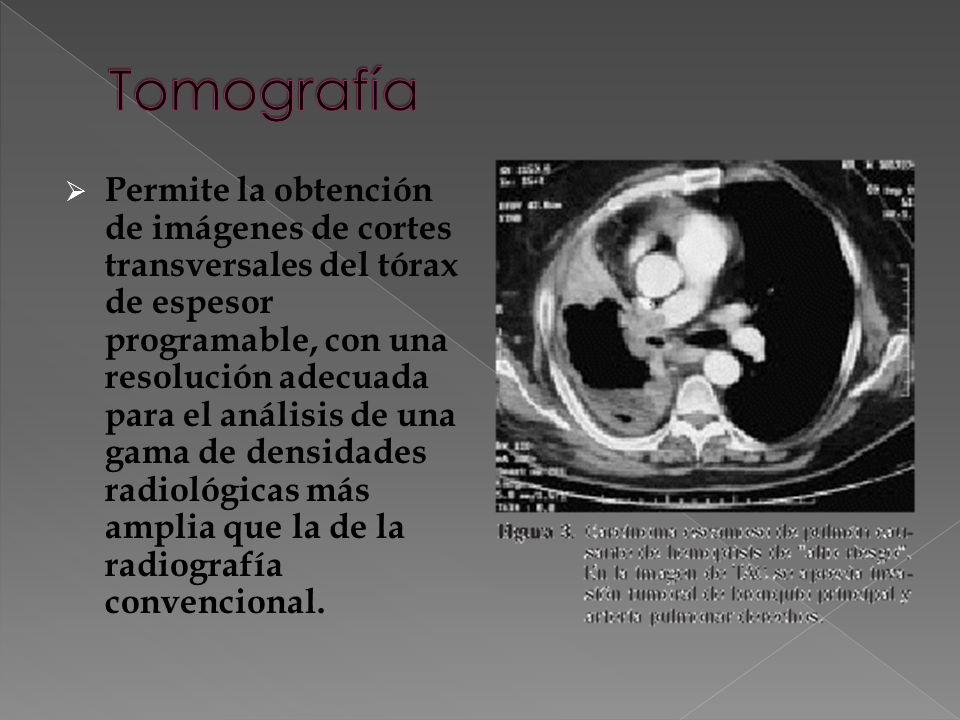 Permite la obtención de imágenes de cortes transversales del tórax de espesor programable, con una resolución adecuada para el análisis de una gama de densidades radiológicas más amplia que la de la radiografía convencional.