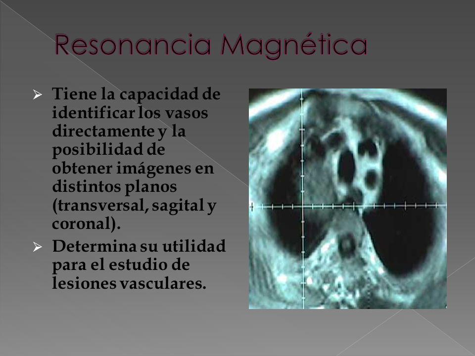 Tiene la capacidad de identificar los vasos directamente y la posibilidad de obtener imágenes en distintos planos (transversal, sagital y coronal).