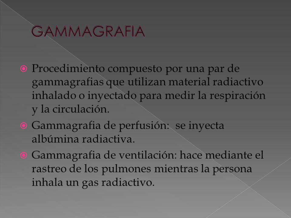 Procedimiento compuesto por una par de gammagrafias que utilizan material radiactivo inhalado o inyectado para medir la respiración y la circulación.