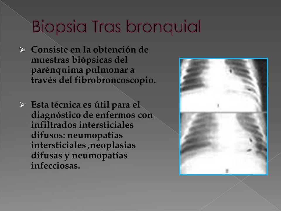 Consiste en la obtención de muestras biópsicas del parénquima pulmonar a través del fibrobroncoscopio.