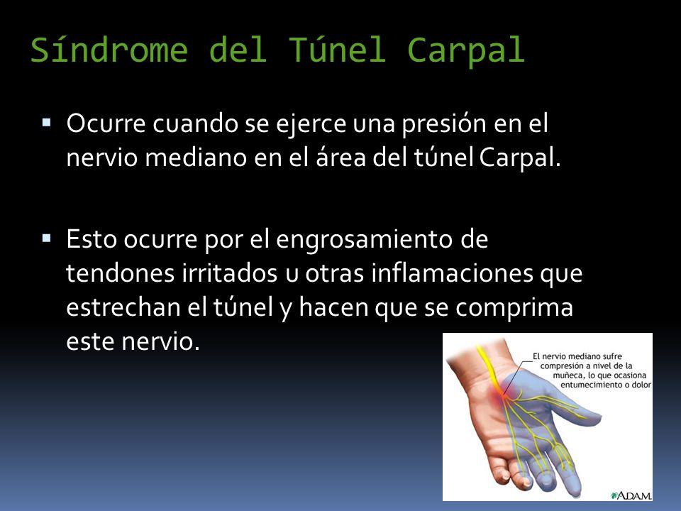 Síndrome del Túnel Carpal Ocurre cuando se ejerce una presión en el nervio mediano en el área del túnel Carpal. Esto ocurre por el engrosamiento de te