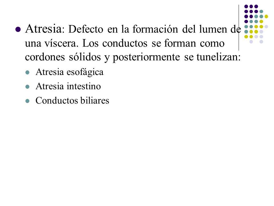 Atresia : Defecto en la formación del lumen de una víscera.