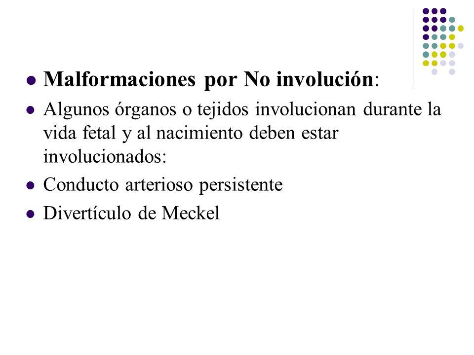 Malformaciones por No involución: Algunos órganos o tejidos involucionan durante la vida fetal y al nacimiento deben estar involucionados: Conducto arterioso persistente Divertículo de Meckel