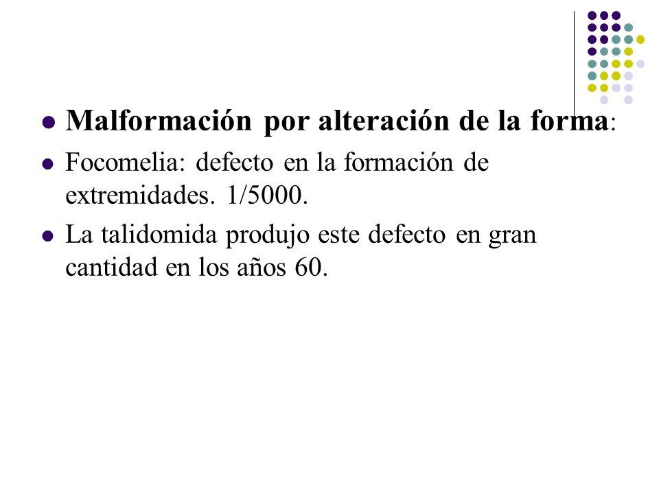 Malformación por alteración de la forma : Focomelia: defecto en la formación de extremidades.