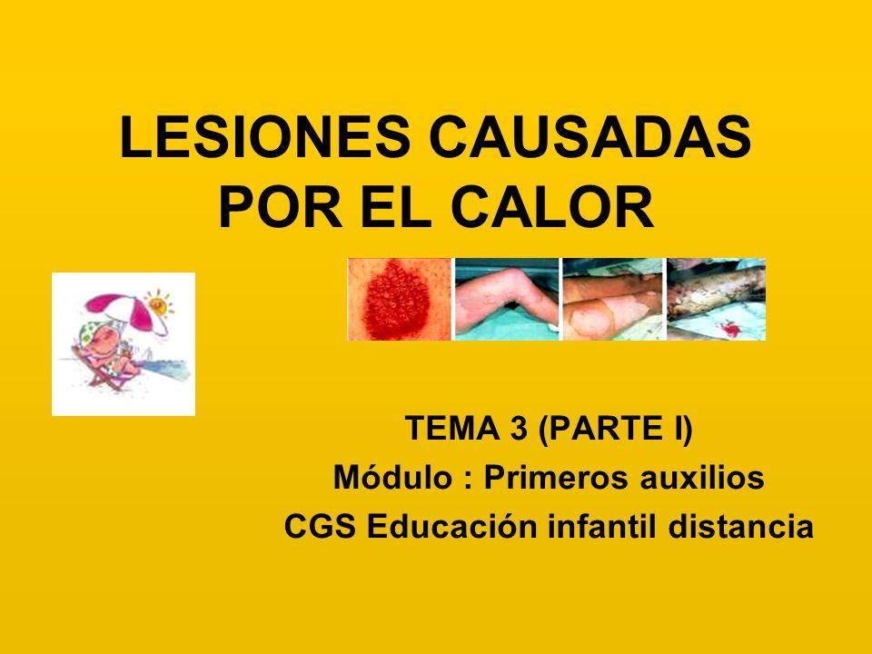 LESIONES CAUSADAS POR EL CALOR TEMA 3 (PARTE I) Módulo : Primeros auxilios CGS Educación infantil distancia