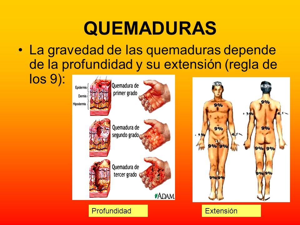 QUEMADURAS La gravedad de las quemaduras depende de la profundidad y su extensión (regla de los 9): ExtensiónProfundidad
