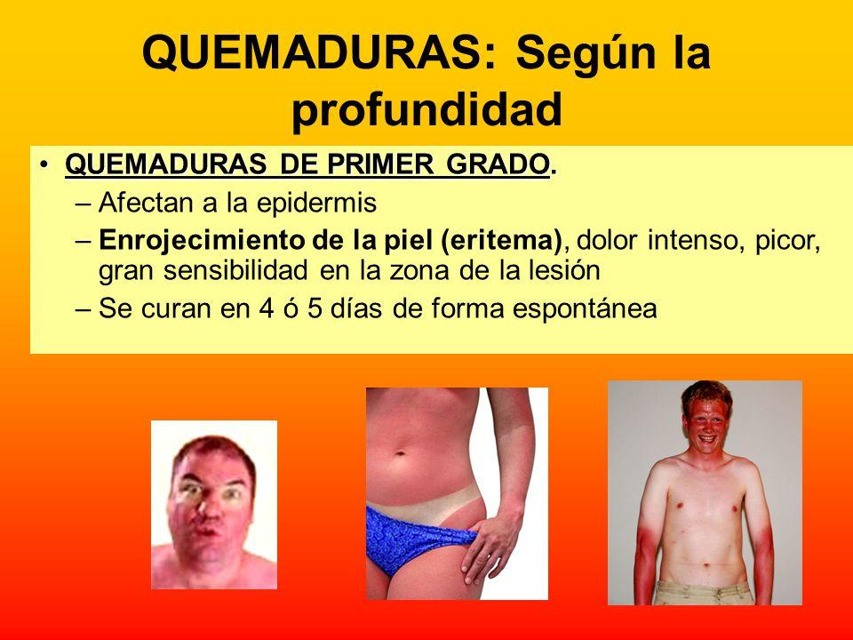 QUEMADURAS: Según la profundidad QUEMADURAS DE PRIMER GRADO.QUEMADURAS DE PRIMER GRADO. –Afectan a la epidermis –Enrojecimiento de la piel (eritema),