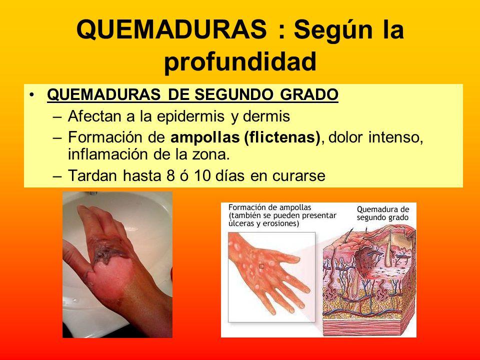 QUEMADURAS : Según la profundidad QUEMADURAS DE SEGUNDO GRADOQUEMADURAS DE SEGUNDO GRADO –Afectan a la epidermis y dermis –Formación de ampollas (flic