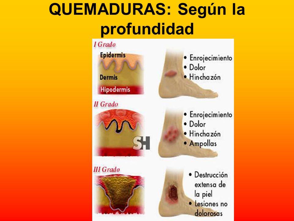 QUEMADURAS: Según la profundidad