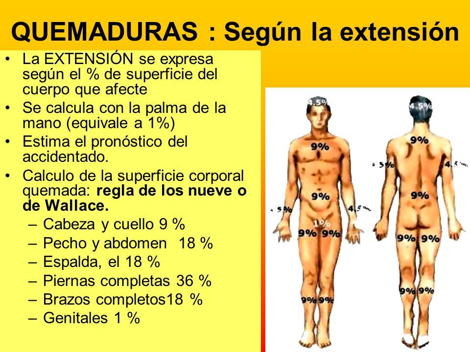 QUEMADURAS : Según la extensión La EXTENSIÓN se expresa según el % de superficie del cuerpo que afecte Se calcula con la palma de la mano (equivale a