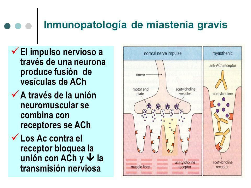 Inmunopatología de miastenia gravis El impulso nervioso a través de una neurona produce fusión de vesículas de ACh A través de la unión neuromuscular se combina con receptores se ACh Los Ac contra el receptor bloquea la unión con ACh y la transmisión nerviosa