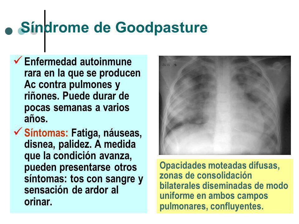 Síndrome de Goodpasture Enfermedad autoinmune rara en la que se producen Ac contra pulmones y riñones. Puede durar de pocas semanas a varios años. Sín