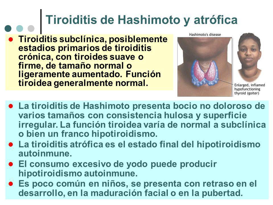 Tiroiditis de Hashimoto y atrófica Tiroiditis subclínica, posiblemente estadios primarios de tiroiditis crónica, con tiroides suave o firme, de tamaño