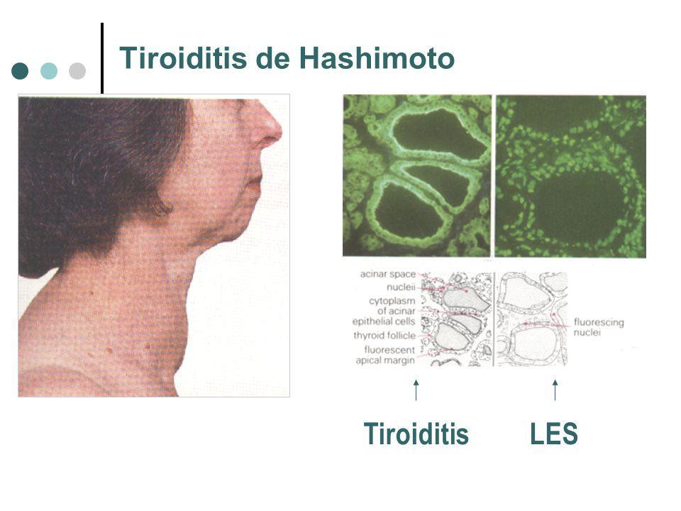 Tiroiditis de Hashimoto Tiroiditis LES