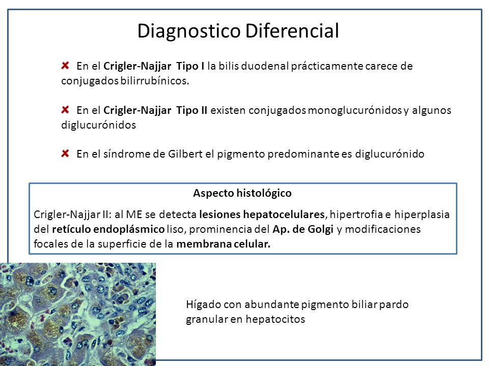 En el Crigler-Najjar Tipo I la bilis duodenal prácticamente carece de conjugados bilirrubínicos. En el Crigler-Najjar Tipo II existen conjugados monog