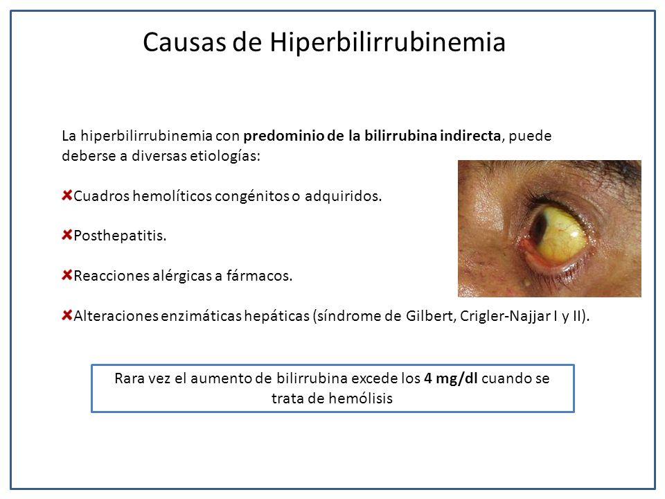 La hiperbilirrubinemia con predominio de la bilirrubina indirecta, puede deberse a diversas etiologías: Cuadros hemolíticos congénitos o adquiridos. P