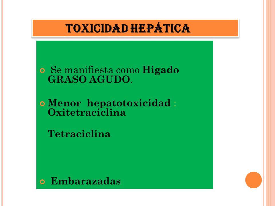 TOXICIDAD HEPATICA Se manifiesta como Higado GRASO AGUDO. Menor hepatotoxicidad : Oxitetraciclina Tetraciclina Embarazadas Toxicidad hepática