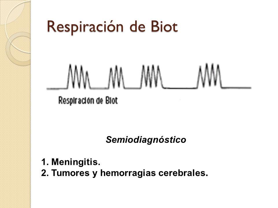 Respiración de Biot Semiodiagnóstico 1. Meningitis. 2. Tumores y hemorragias cerebrales.