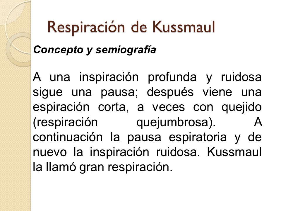 Respiración de Kussmaul Concepto y semiografía A una inspiración profunda y ruidosa sigue una pausa; después viene una espiración corta, a veces con quejido (respiración quejumbrosa).