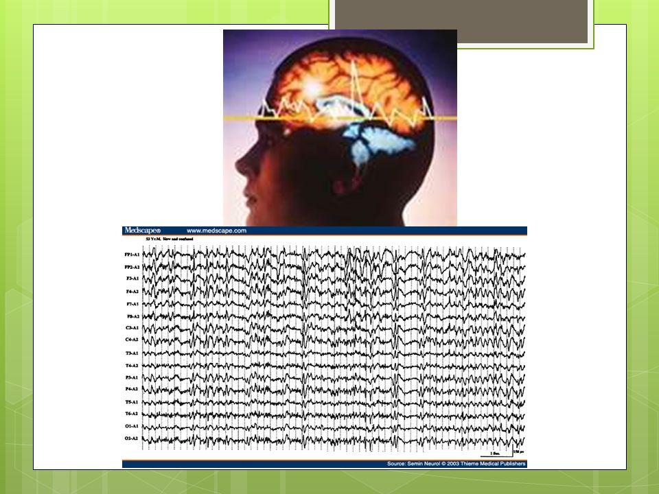 Causas de Status Epiléptico Malignidad Tumor Malformación Cortical Otros Retiro de Medicamentos Infección Recurrente Anormalidad Estructural/ Traumática.