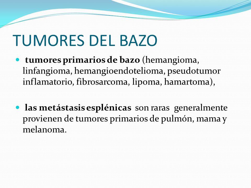 TUMORES LINFOMA NO HODGKIN Es el tumor maligno más frecuente que afecta el bazo.