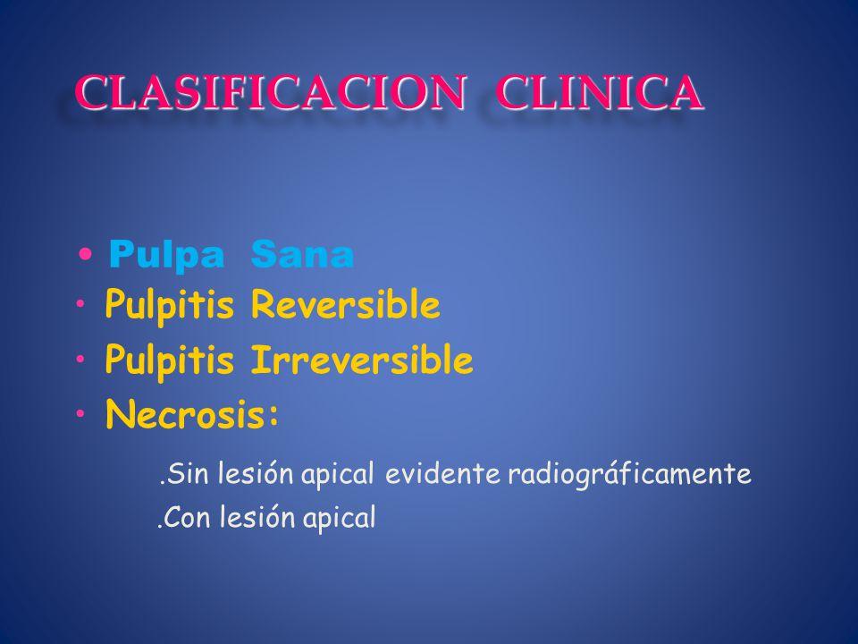 Pulpitis Reversible Pulpitis Irreversible Necrosis:.Sin lesión apical evidente radiográficamente.Con lesión apical Pulpa Sana CLASIFICACION CLINICA
