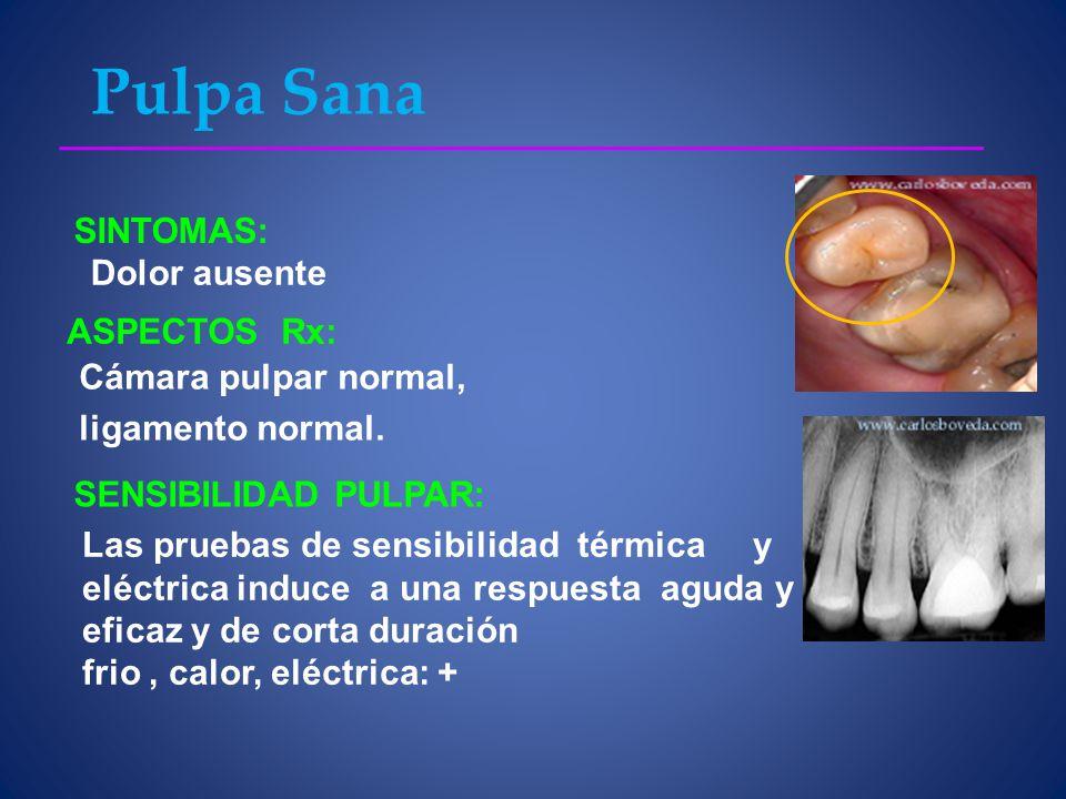 Pulpa Sana SINTOMAS: Dolor ausente ASPECTOS Rx: Cámara pulpar normal, ligamento normal.