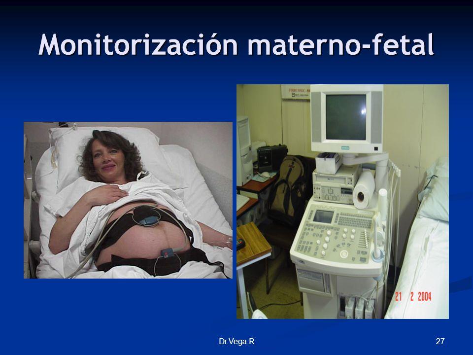 27Dr.Vega.R Monitorización materno-fetal