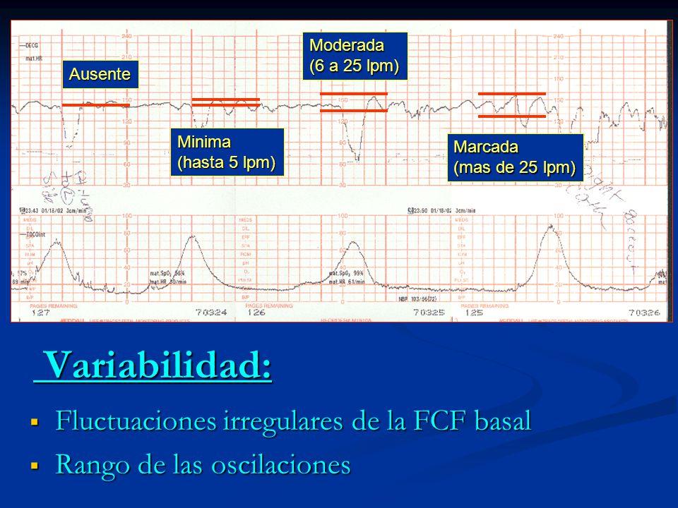 Variabilidad: Variabilidad: Fluctuaciones irregulares de la FCF basal Fluctuaciones irregulares de la FCF basal Rango de las oscilaciones Rango de las