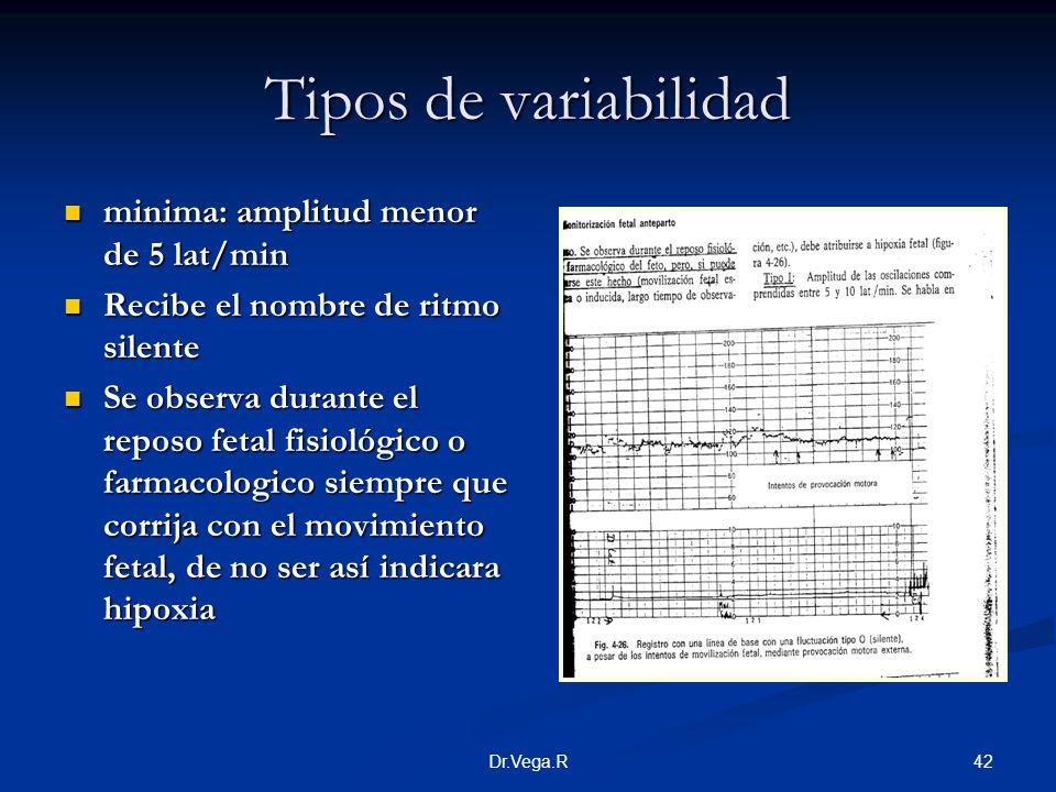 42Dr.Vega.R Tipos de variabilidad minima: amplitud menor de 5 lat/min minima: amplitud menor de 5 lat/min Recibe el nombre de ritmo silente Recibe el