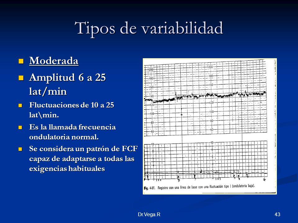 43Dr.Vega.R Tipos de variabilidad Moderada Moderada Amplitud 6 a 25 lat/min Amplitud 6 a 25 lat/min Fluctuaciones de 10 a 25 lat\min. Fluctuaciones de