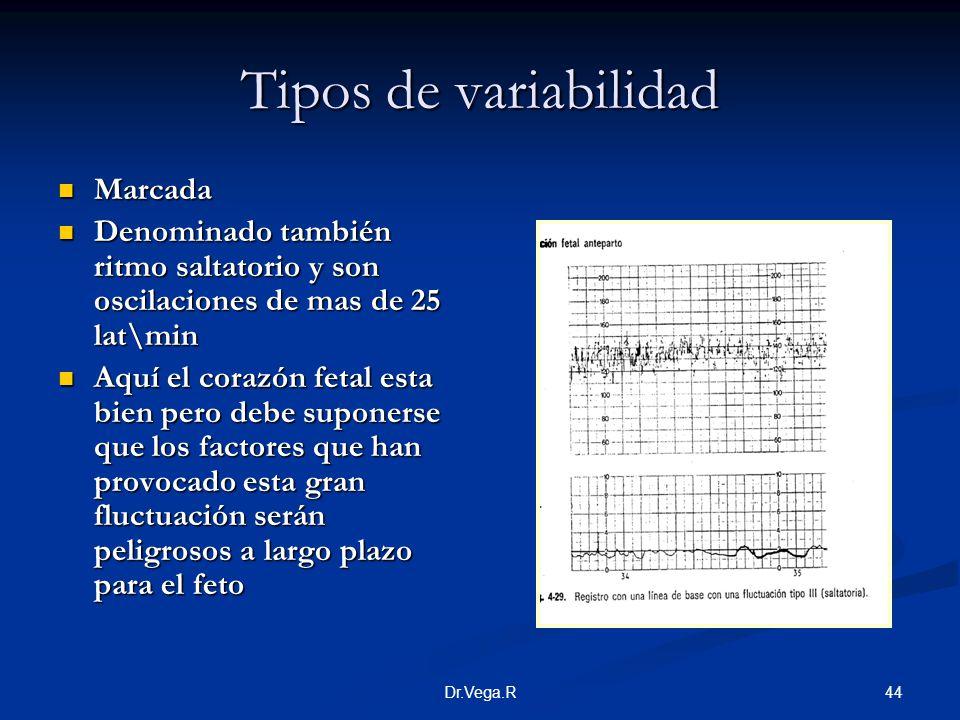 44Dr.Vega.R Tipos de variabilidad Marcada Marcada Denominado también ritmo saltatorio y son oscilaciones de mas de 25 lat\min Denominado también ritmo