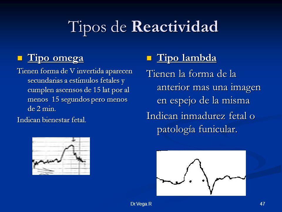 47Dr.Vega.R Tipos de Reactividad Tipos de Reactividad Tipo omega Tipo omega Tienen forma de V invertida aparecen secundarias a estímulos fetales y cum