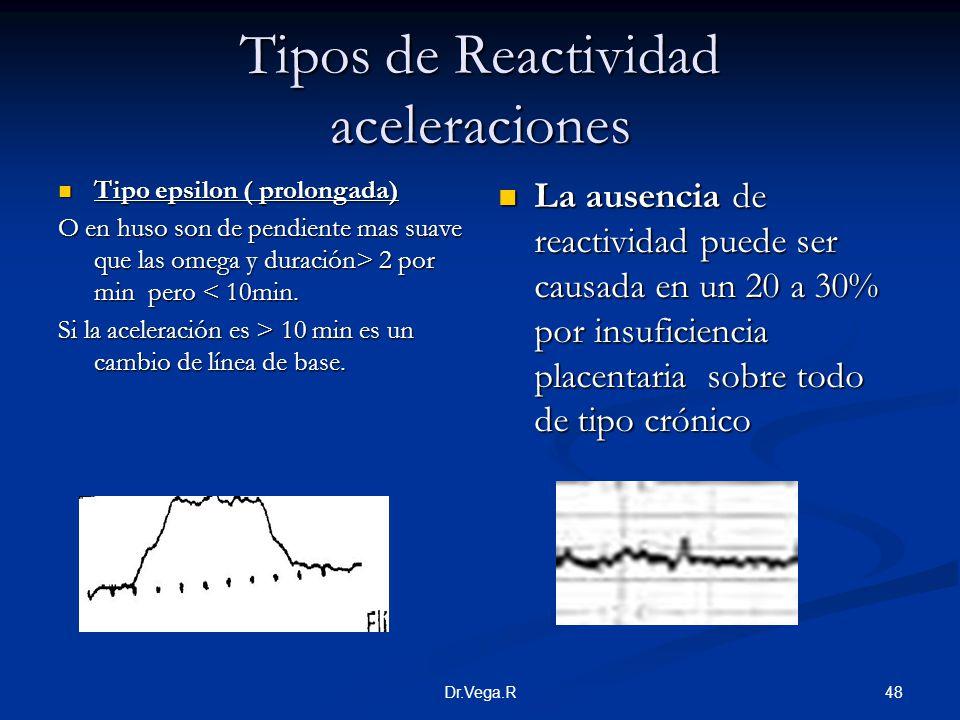 48Dr.Vega.R Tipos de Reactividad aceleraciones Tipo epsilon ( prolongada) Tipo epsilon ( prolongada) O en huso son de pendiente mas suave que las omeg