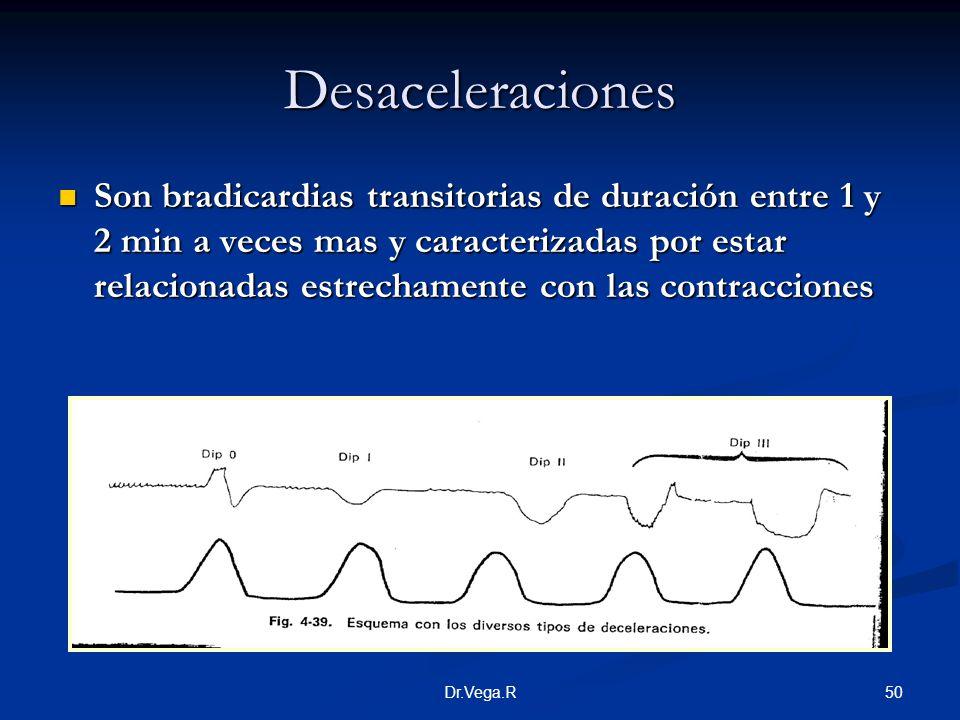 50Dr.Vega.R Desaceleraciones Son bradicardias transitorias de duración entre 1 y 2 min a veces mas y caracterizadas por estar relacionadas estrechamen