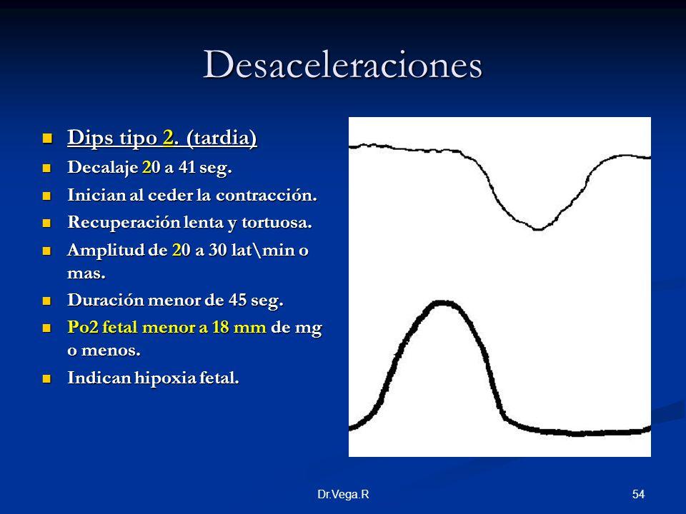 54Dr.Vega.R Desaceleraciones Dips tipo 2. (tardia) Dips tipo 2. (tardia) Decalaje 20 a 41 seg. Decalaje 20 a 41 seg. Inician al ceder la contracción.