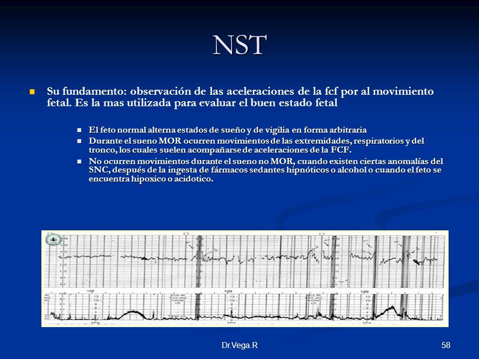 58Dr.Vega.R NST Su fundamento: observación de las aceleraciones de la fcf por al movimiento fetal. Es la mas utilizada para evaluar el buen estado fet